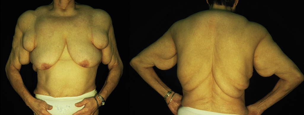 lebenserwartung bei polyneuropathie
